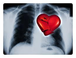תרופות להפרעות קשב וריכוז עלולות להכפיל אירועי לב בילדים